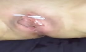 Playing with Needles